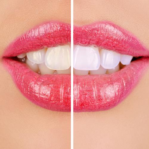 servicios dental